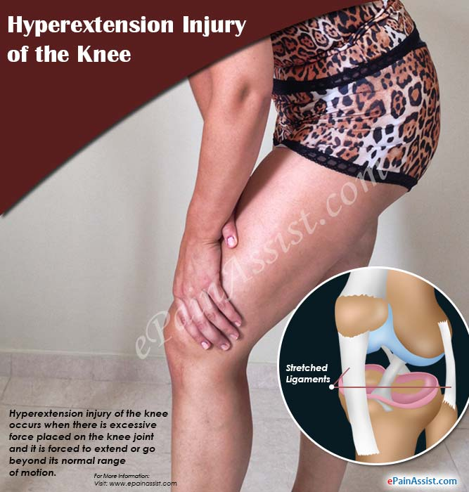 What is Hyperextension Injury of the Knee?