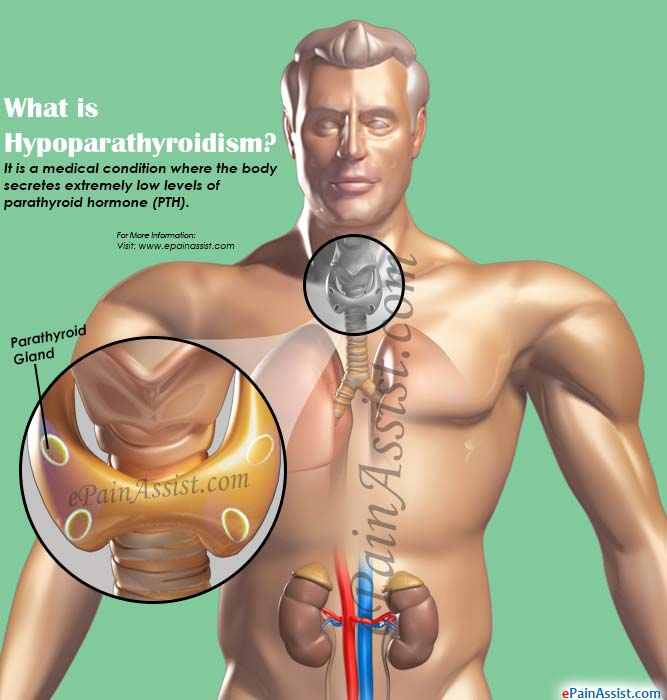 What is Hypoparathyroidism?