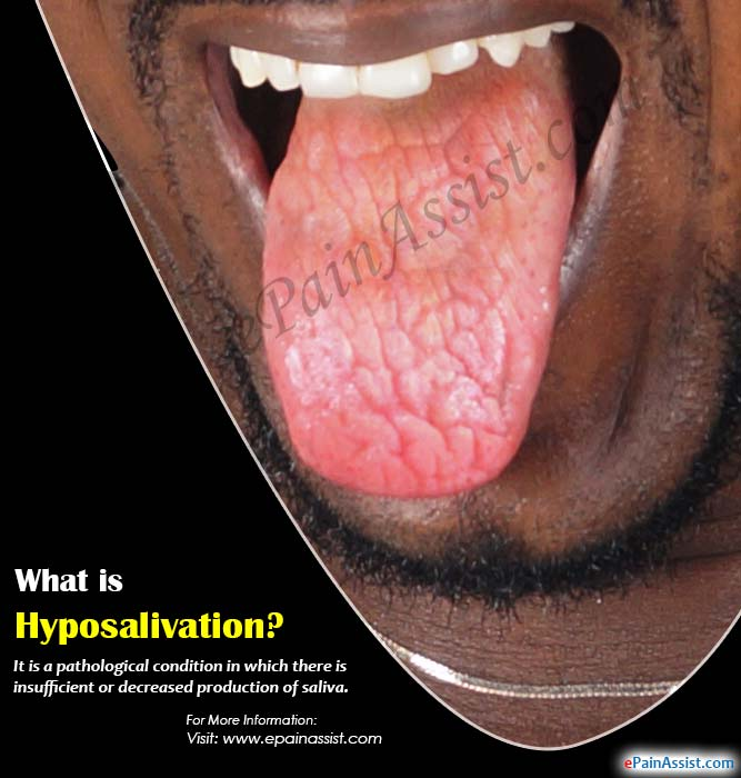 What is Hyposalivation?