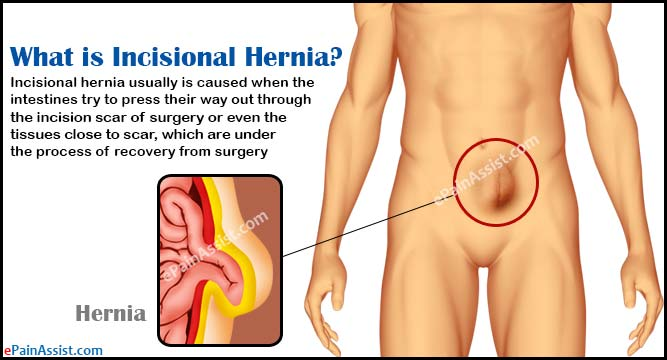 What is Incisional Hernia?