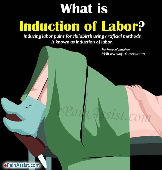 What is Induction of Labor?
