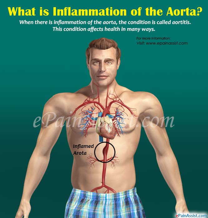 What is Inflammation of the Aorta?