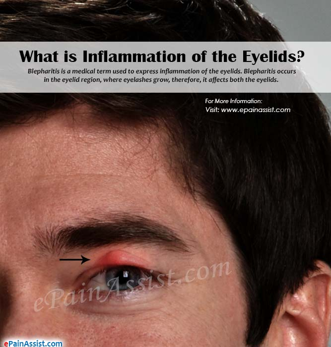What is Inflammation of the Eyelids or Blepharitis?