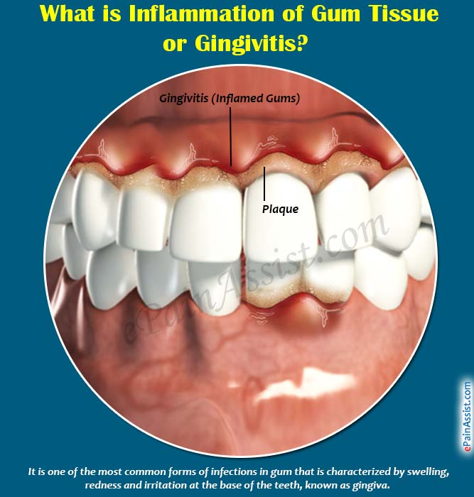 What is Inflammation of Gum Tissue or Gingivitis?