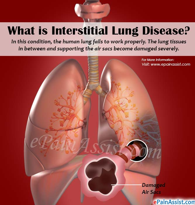 What is Interstitial Lung Disease or Diffuse Parenchymal Lung Disease?