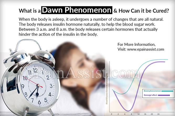 what is a dawn phenomenon how can it be cured