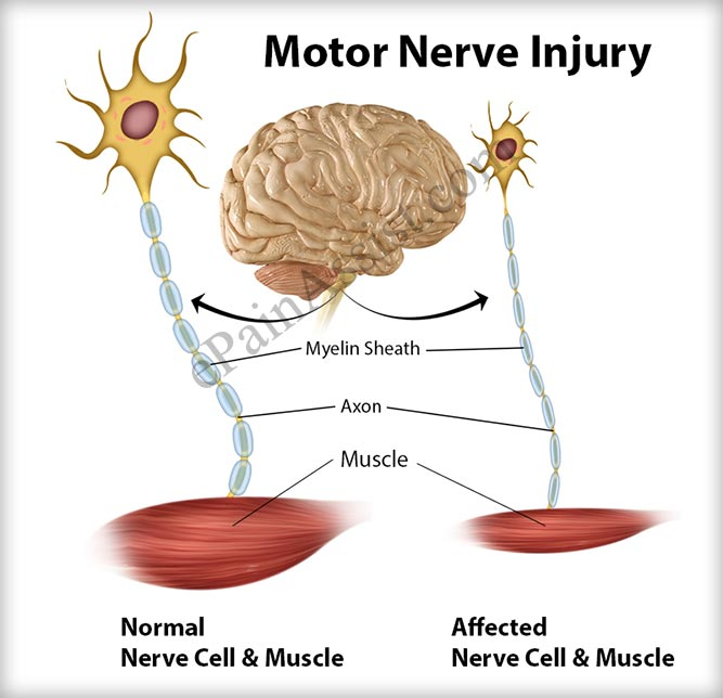 What is a Motor Nerve Injury?