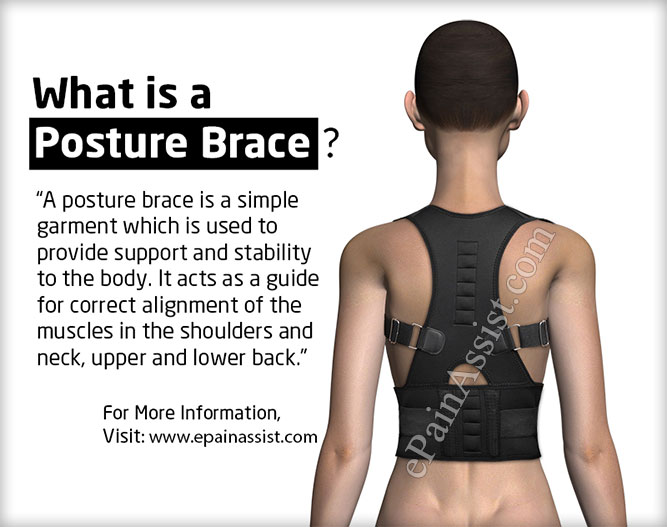 Posture Brace: What is a Posture Brace?