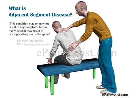 What is Adjacent Segment Disease?