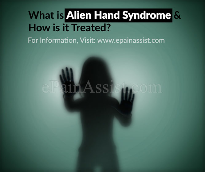 What is Alien Hand Syndrome?
