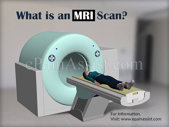 What is an MRI Scan?
