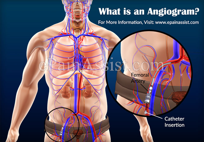 What is an Angiogram