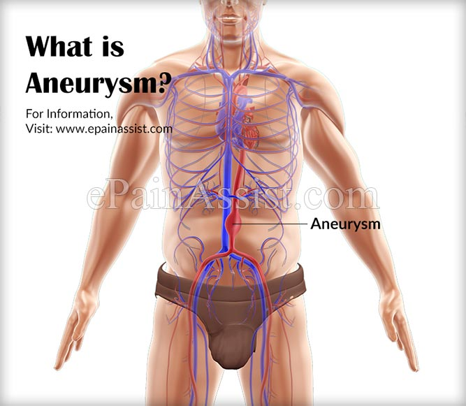 What is Aneurysm or Aneurism?