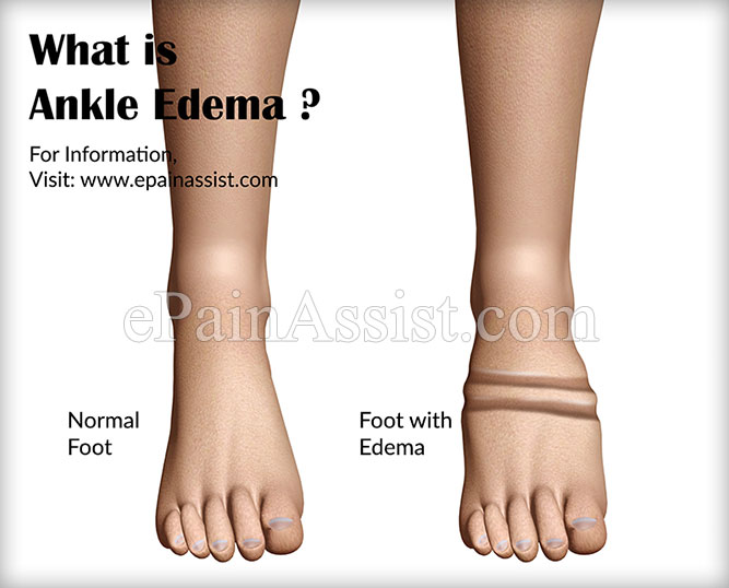 What Causes Ankle Edema and Natural Ways to Get Rid of Ankle Swelling?