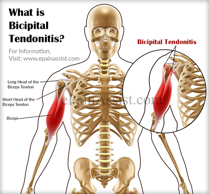 What is Bicipital Tendonitis|Causes|Symptoms|Treatment ...