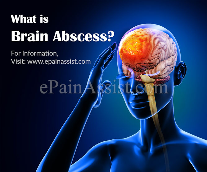 What is Brain Abscess?
