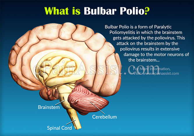 What is Bulbar Polio?