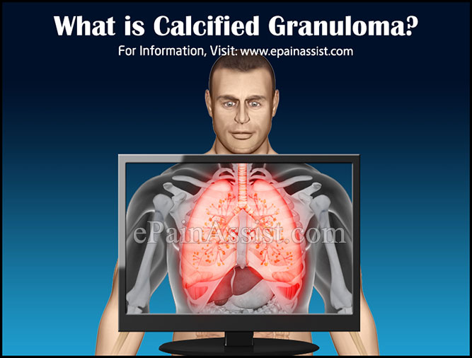 What is Calcified Granuloma?