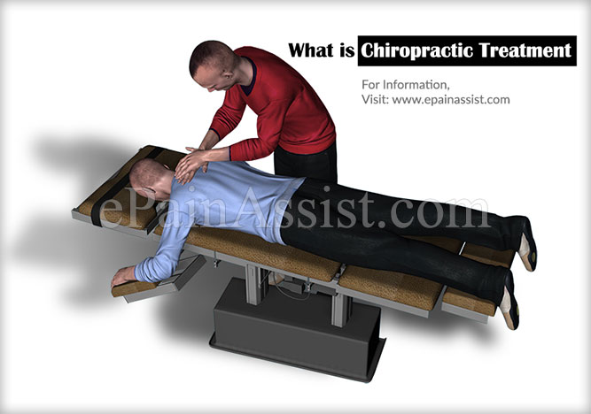 What is Chiropractic Treatment?
