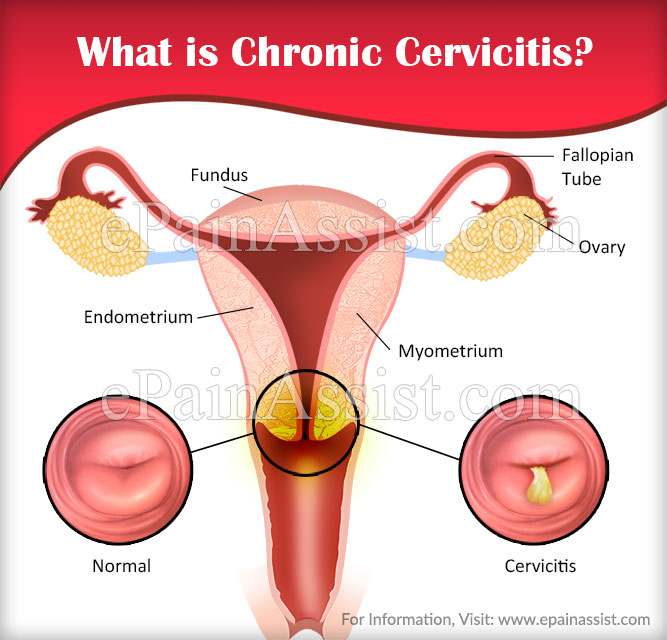 What is Chronic Cervicitis?