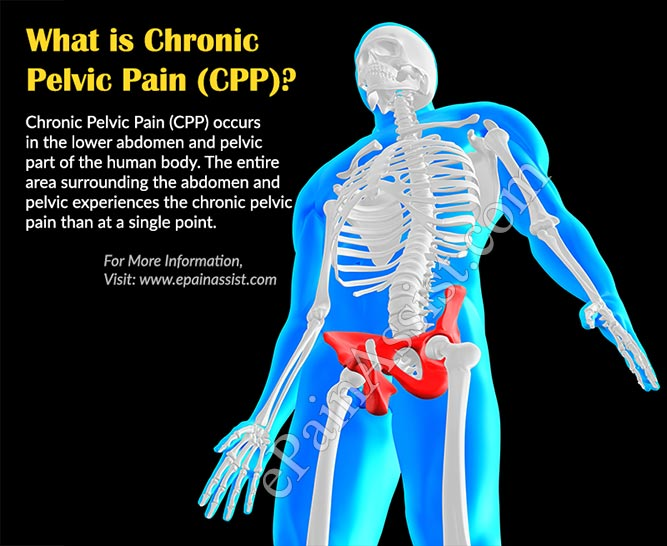 What is Chronic Pelvic Pain (CPP)?