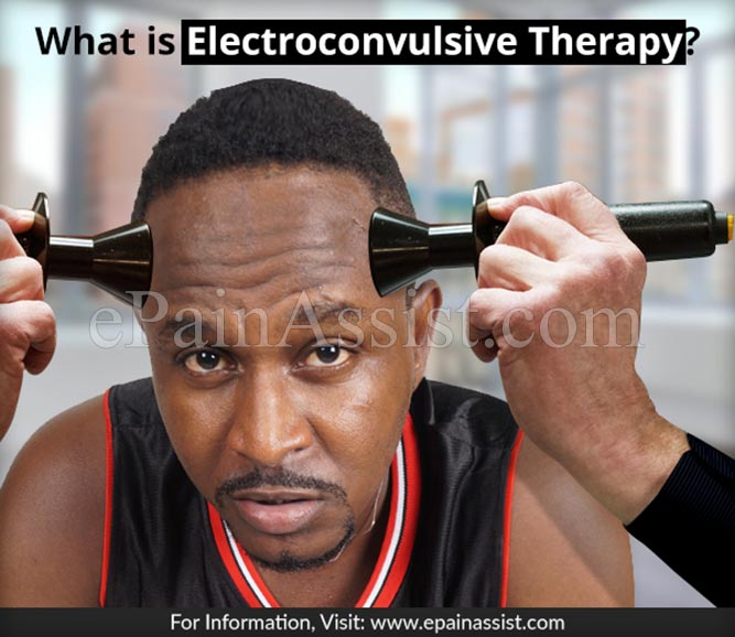 What is Electroconvulsive Therapy or ECT?