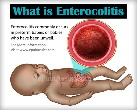 What is Enterocolitis