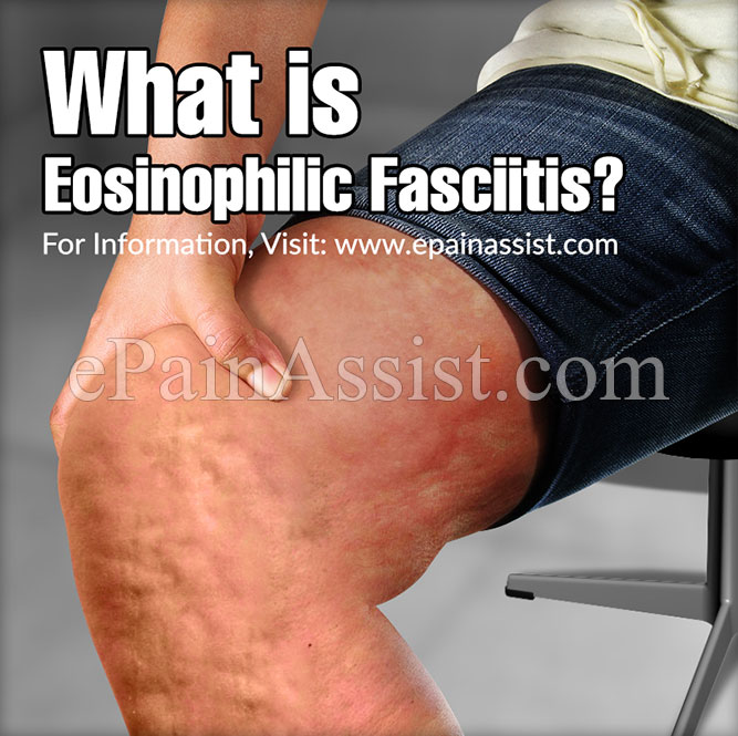 What Is Eosinophilic Fasciitiscausessymptomstreatmentprognosis