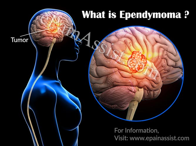 What is Ependymoma