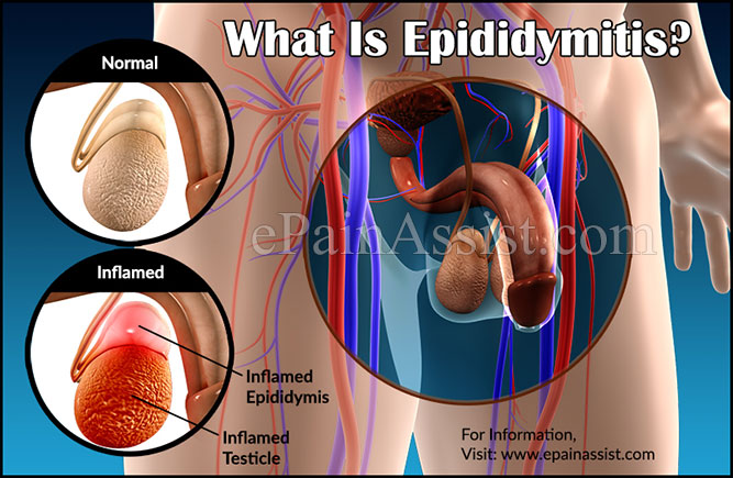 What Is Epididymitis?