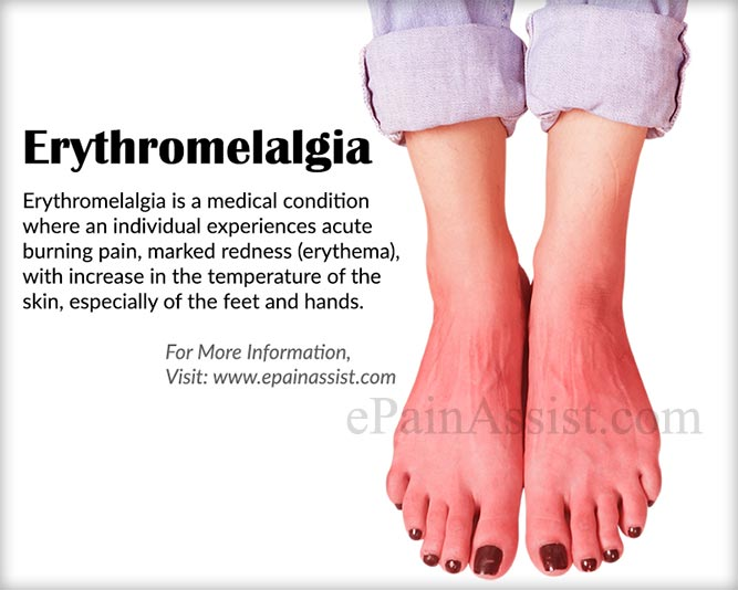 What is Erythromelalgia?