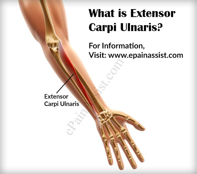 What is Extensor Carpi Ulnaris and What is its Function?