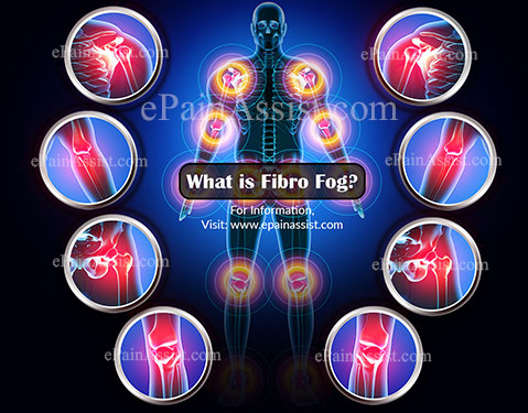 What is Fibro Fog?