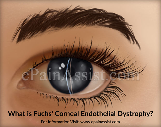 What is Fuchs' Corneal Endothelial Dystrophy?