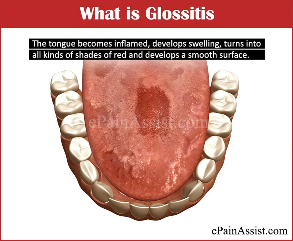 What is Glossitis?