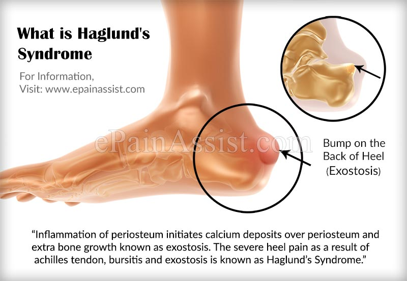 What is Haglund's Syndrome?