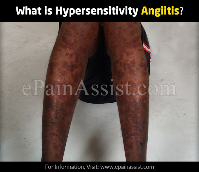 What is Hypersensitivity Angiitis?
