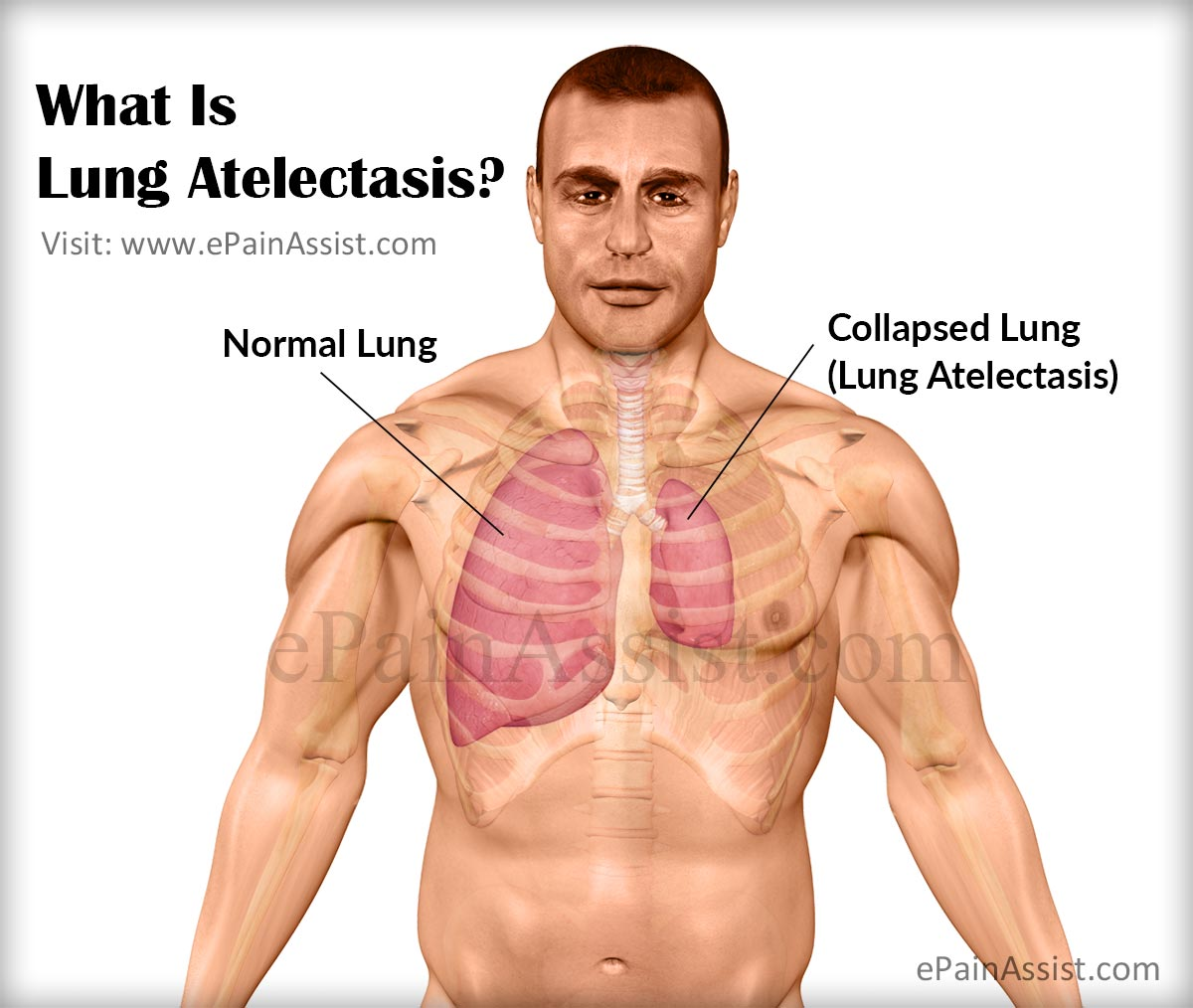 what is lung atelectasis & what is its pathophysiology?, Cephalic Vein