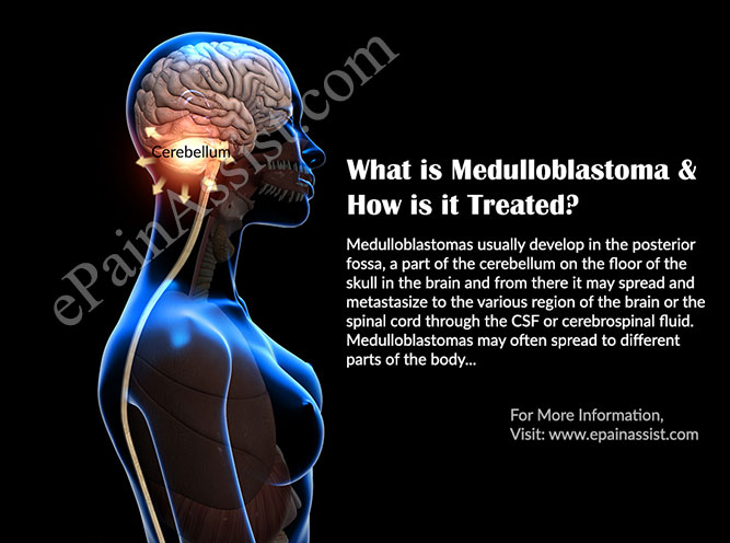 What is Medulloblastoma & How is it Treated?