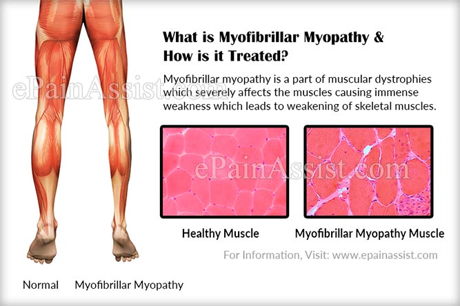 What is Myofibrillar Myopathy & How is it Treated?