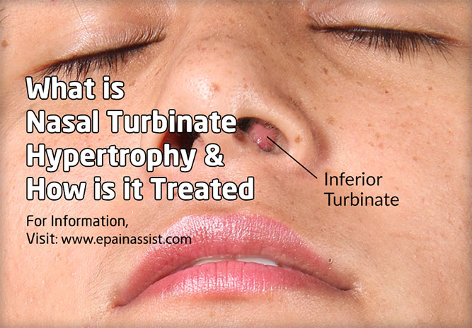 What is Nasal Turbinate Hypertrophy & How is it Treated