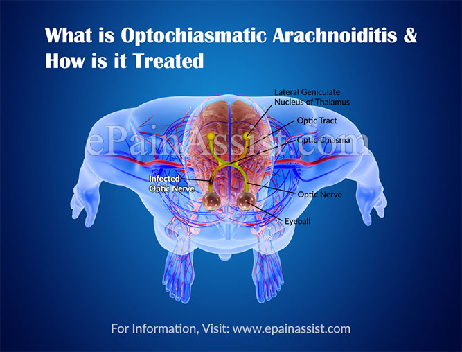 What is Optochiasmatic Arachnoiditis & How is it Treated?
