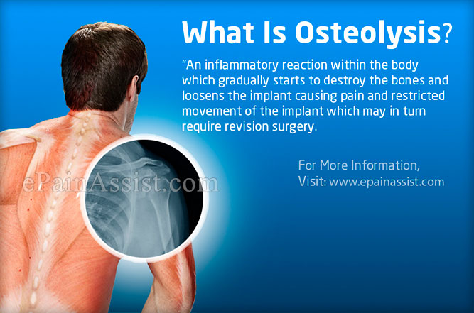 What is Osteolysis?
