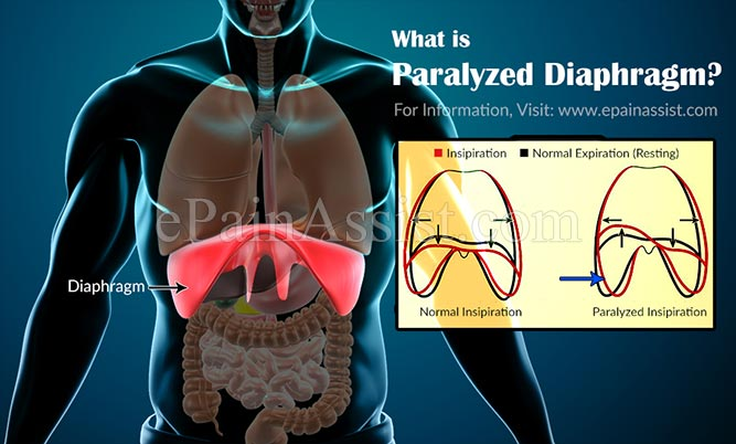 What is Paralyzed Diaphragm?
