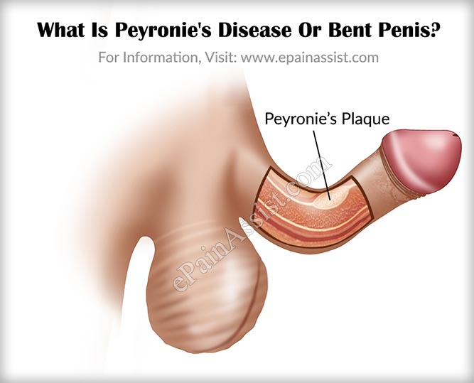 What Is Peyronie's Disease Or Bent Penis?