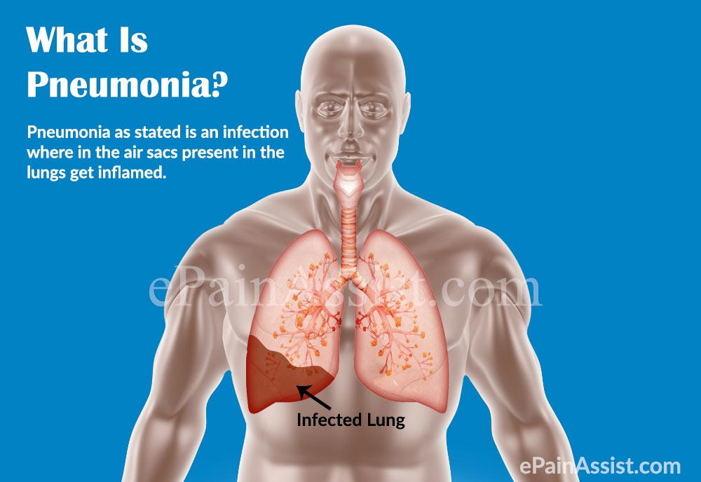 pneumonia: treatment, home remedies, causes, symptoms, types, Human body
