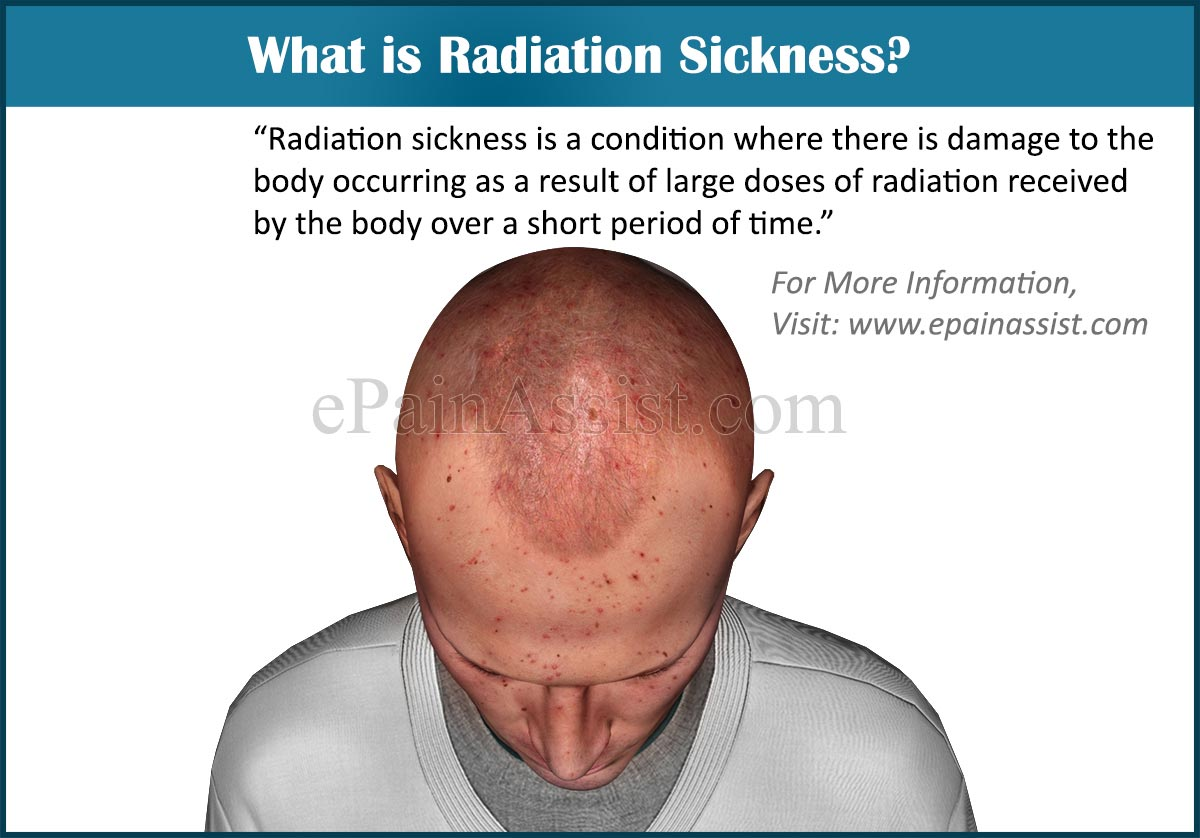 What is Radiation Sickness?