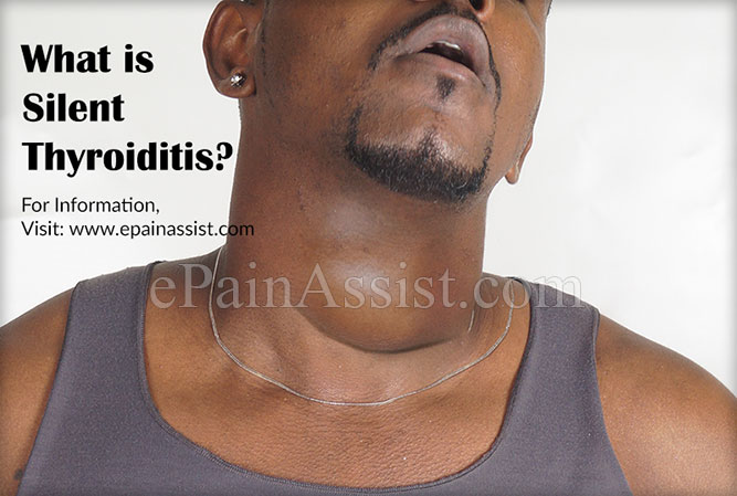 What is Silent Thyroiditis?