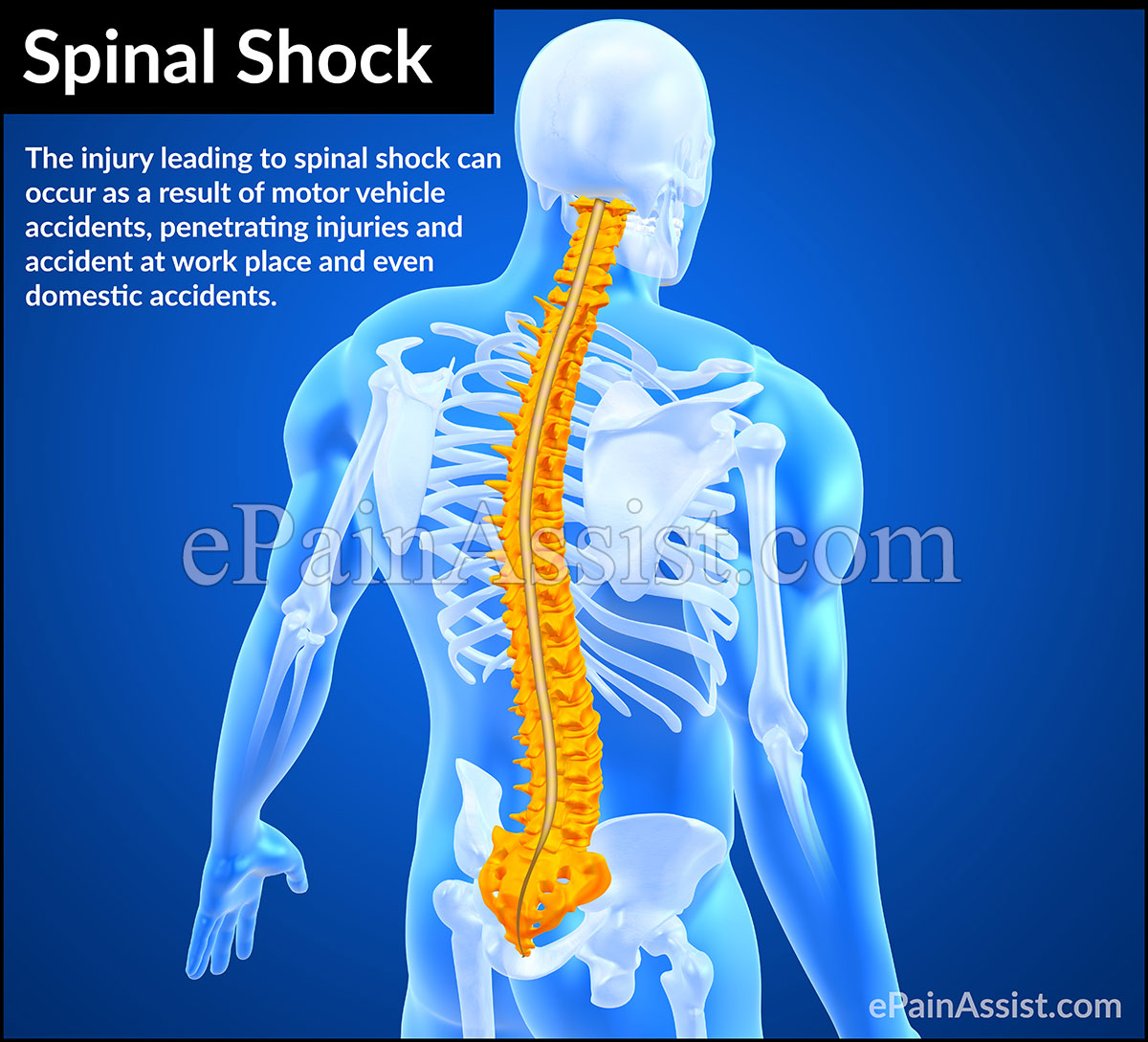 What is Spinal Shock?