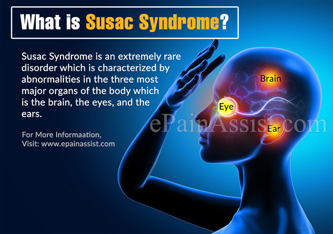 What is Susac Syndrome?